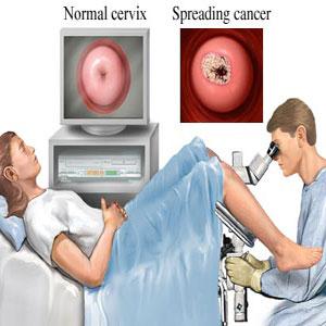 penyakit kanker rahim serviks